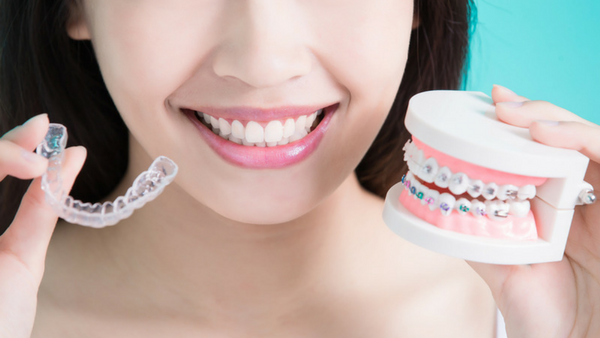 Braces clear aligners