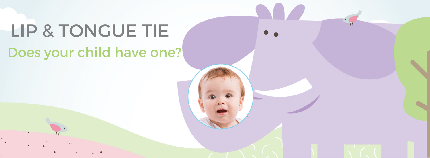 Does your baby have lip or tongue tie?